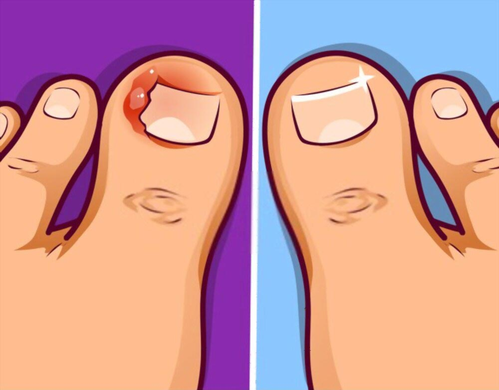How To Fix Curved Toenail